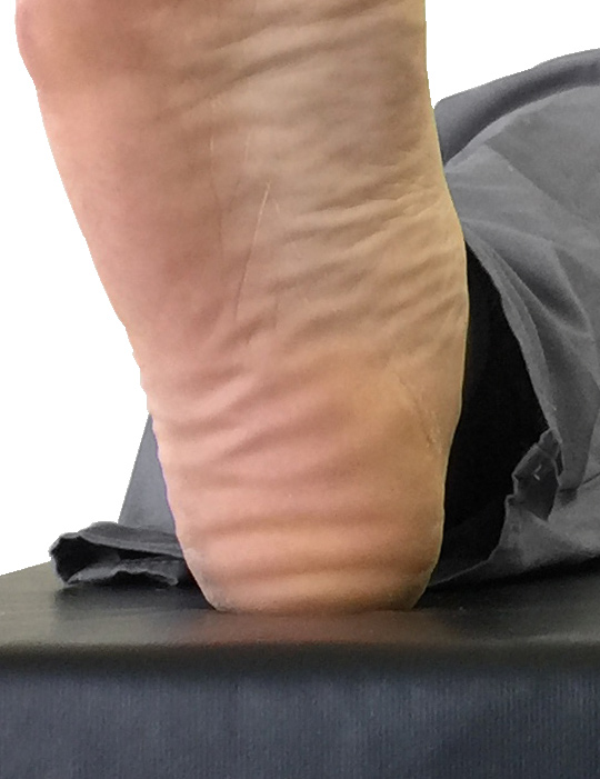 Tissue compression on heel without countoured pad